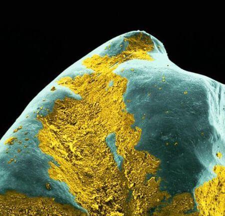 Скопление бактерий на поверхности зуба под микроскопом