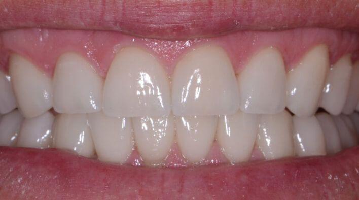 Выравнивание зубов и исправление прикуса
